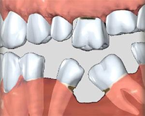 установить имплантат стоматология Спектрдент в Москве