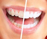 Профессиональное отбеливание зубов на Авиамоторной