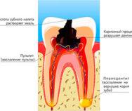 Лечение острого и хронического пульпита, периодонтита