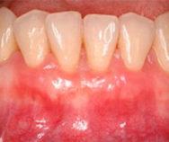 Вестибулопластика нижней челюсти после операции