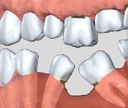 В какой срок после удаления зуба можно установить имплантат?