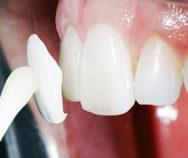 Что такое люминиры, стоит ли клеить их себе на зубы?