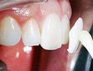 Когда можно протезировать зубы частями, а когда обязательно стразу все?