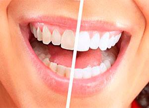 Отбеливание зубов на Авиамоторной