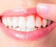 Кровоточат десна лечение в стоматологии спектрдент на авиамоторной